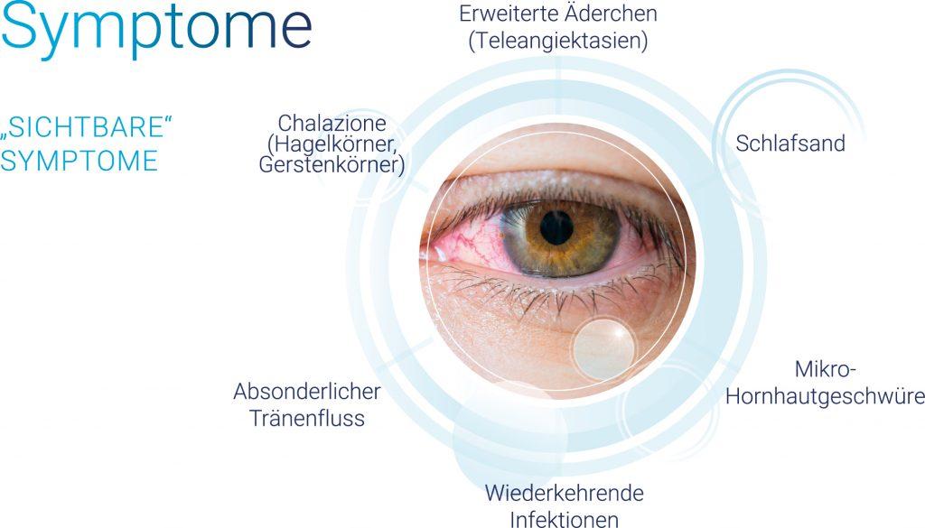 Abblildung der Symptome trockener Augen